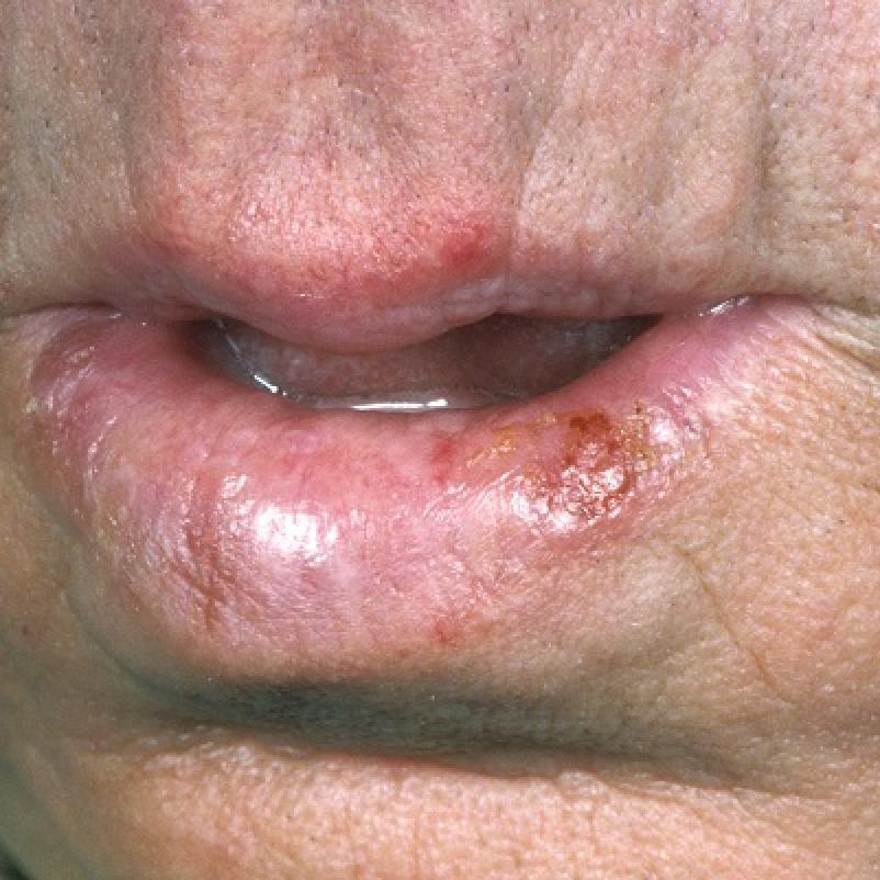plaveiselcelcarcinoom lip